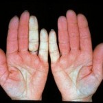 Natural remedy for raynaud's