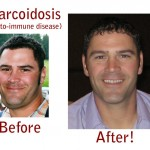 sarcoidosis natural treatment