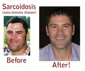 sarcoidosis natural treatment